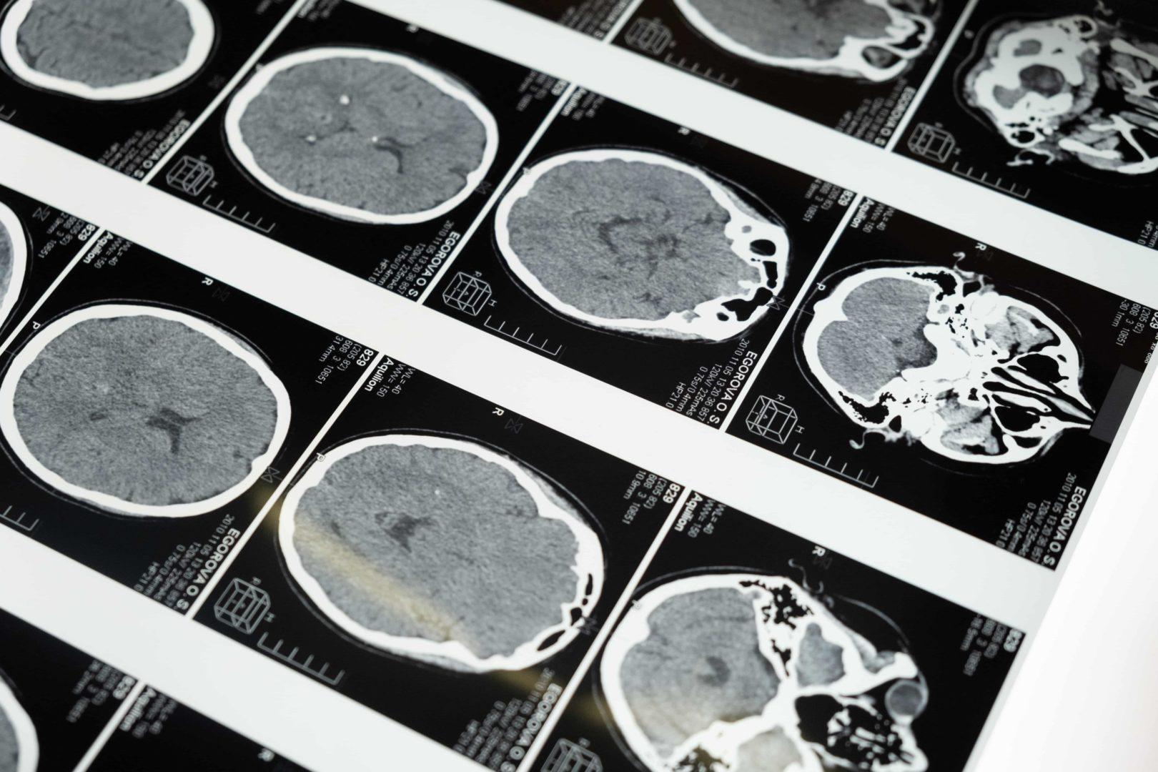 Neuromarketing - czym jest i dlaczego warto się nim zainteresować